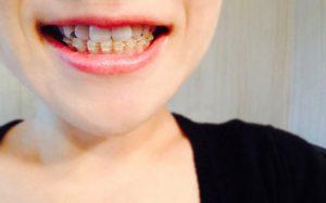 歯並び・矯正による虫歯予防