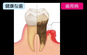健康な歯と歯周病の比較