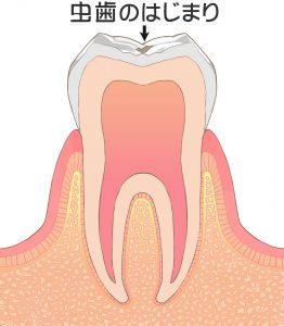 治療をする必要がない歯