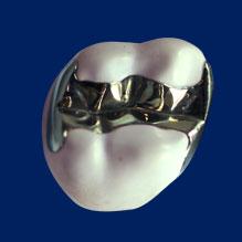 虫歯が再発しやすい銀歯