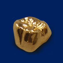 ゴールドCr奥歯