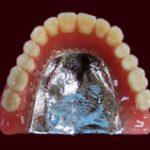 チタン床総義歯