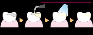 コンポジットレジン充填法のイメージ 虫歯をけずり、きれいに成形 レジン複合材を盛る 光照射により硬化する 研磨し歯の形態に整える