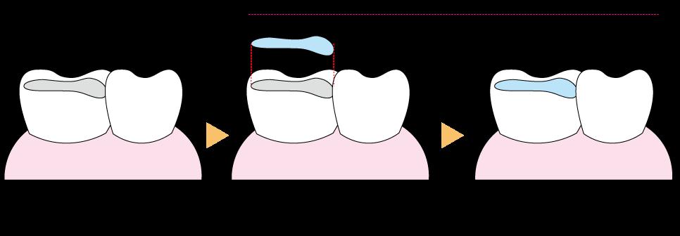 インレー修復法の治療イメージ 虫歯を削って成形し歯型を採取 歯型を元に制作した修復物を接着 研磨・調整して、歯の形態やかみ合わせを整える