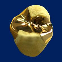 ゴールド(金)を使った詰め物で歯とピッタリ適合するため、長持ちする可能性が高い