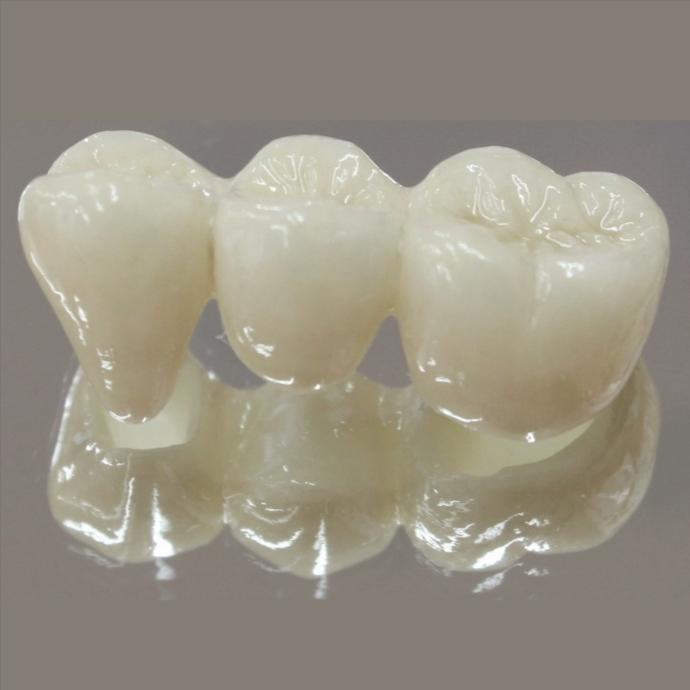 ジルコニアボンドBr奥歯