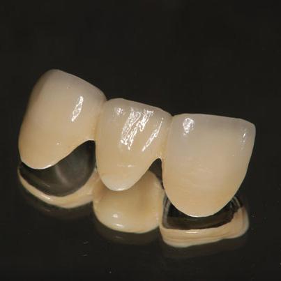 メタルボンドBr前歯
