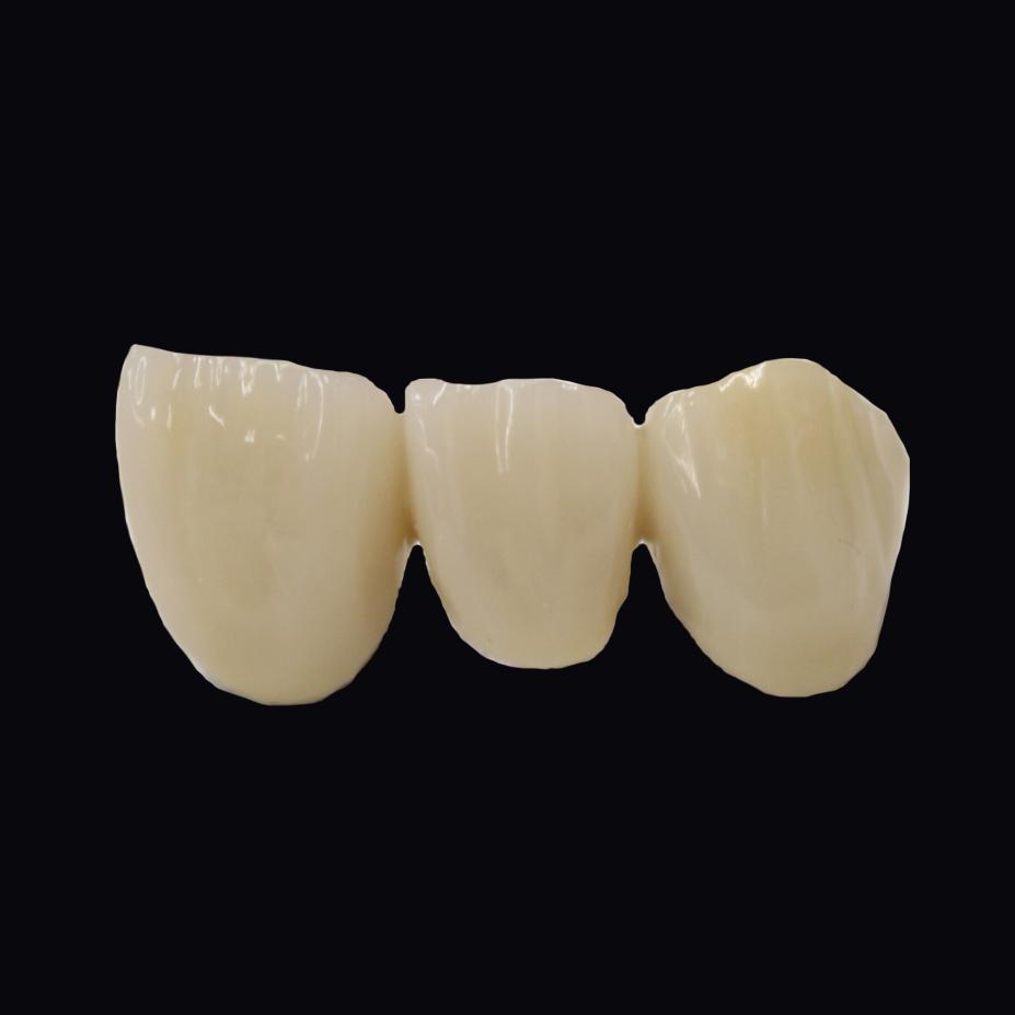 前装冠Br前歯