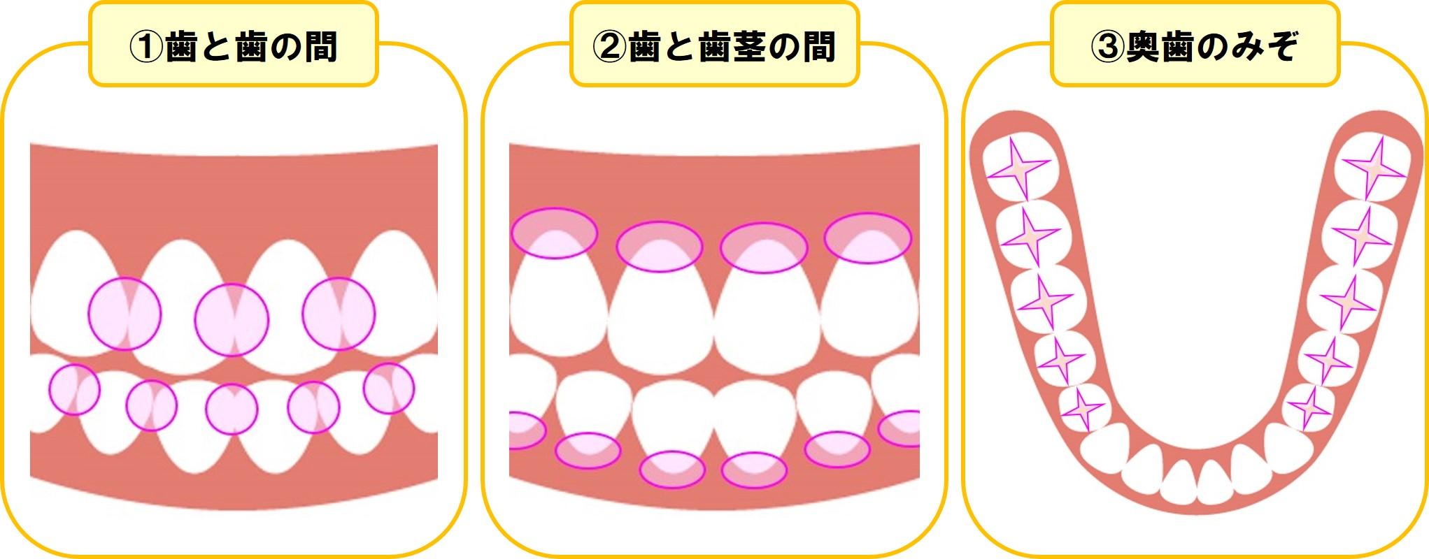 虫歯になりやすい場所のイラスト