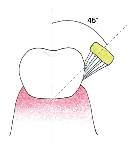 歯ブラシの当てる角度