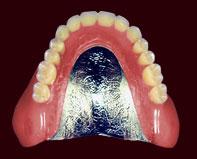 コバルト床義歯