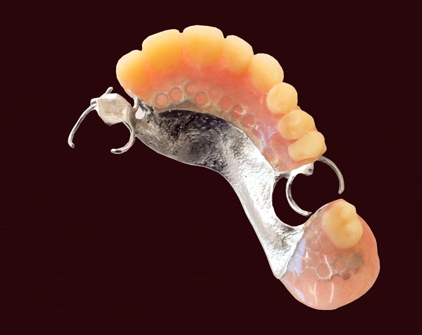 チタン床部分義歯