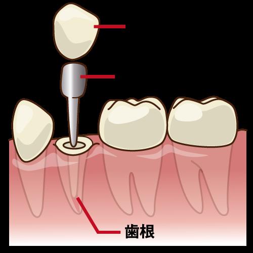 被せ物、メタルコア、歯根の図