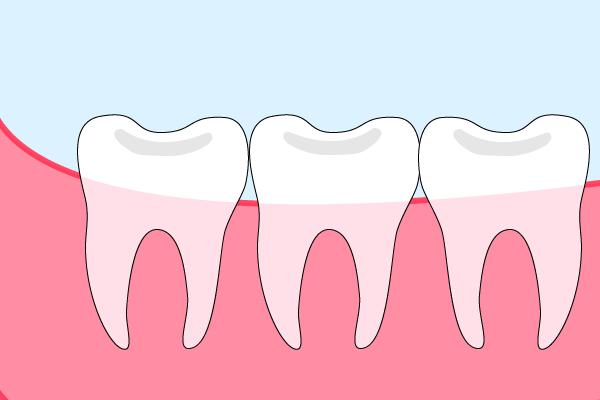 正常な智歯