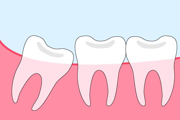 半埋伏智歯