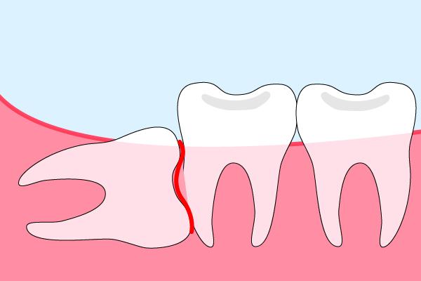 水平埋伏智歯