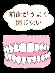 受け口で下の顎が出ている