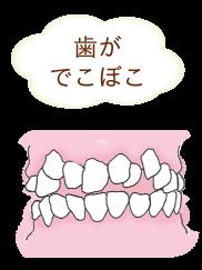 叢生で歯がぼこぼこ