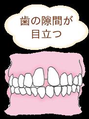 歯の隙間が目立つすきっ歯