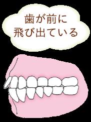 歯が前に出ている出っ歯